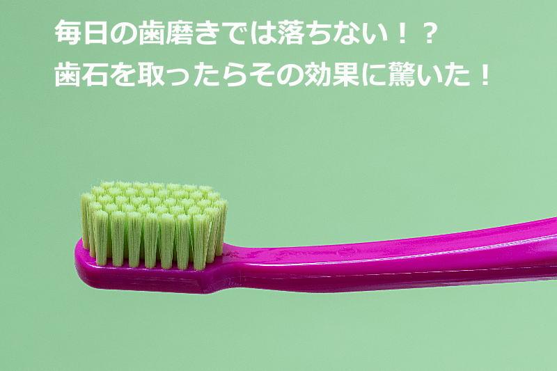 毎日の歯磨きでは落ちない!?歯石を取ったらその効果に驚いた!気になる痛みや費用も紹介!